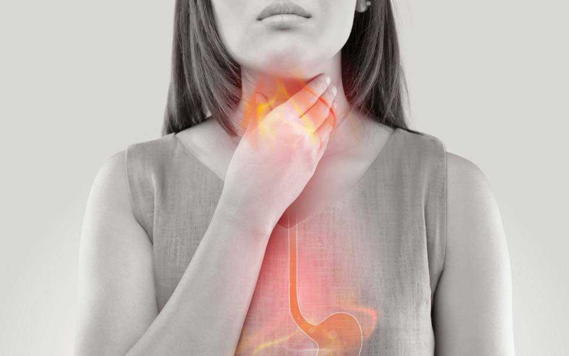All about acid reflux